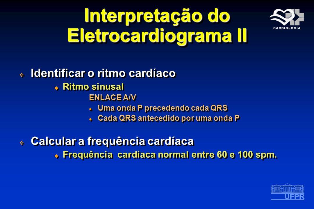 Interpretação do Eletrocardiograma II