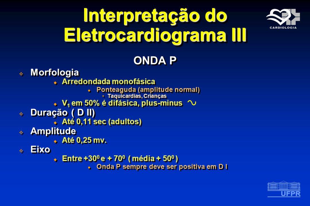 Interpretação do Eletrocardiograma III