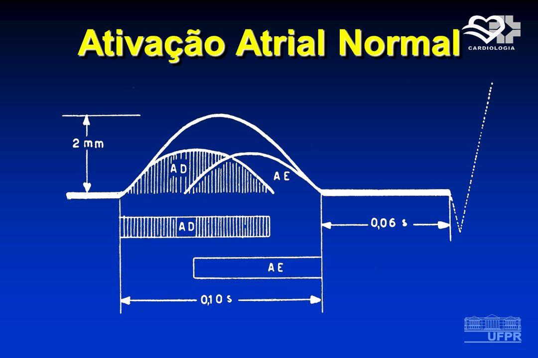 Ativação Atrial Normal