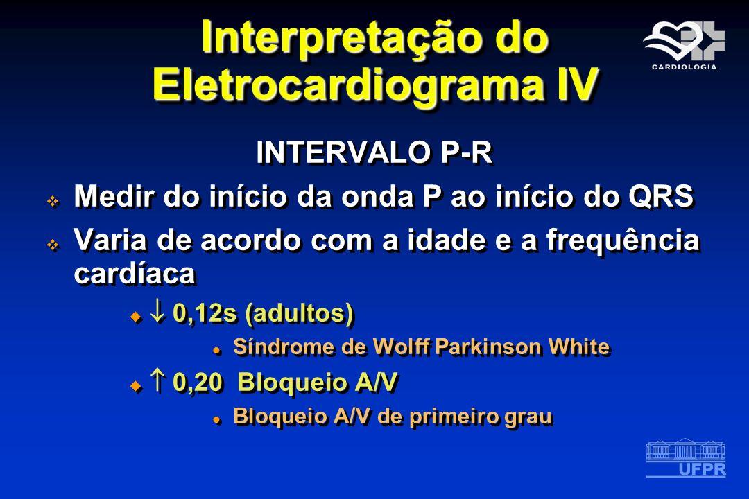 Interpretação do Eletrocardiograma IV