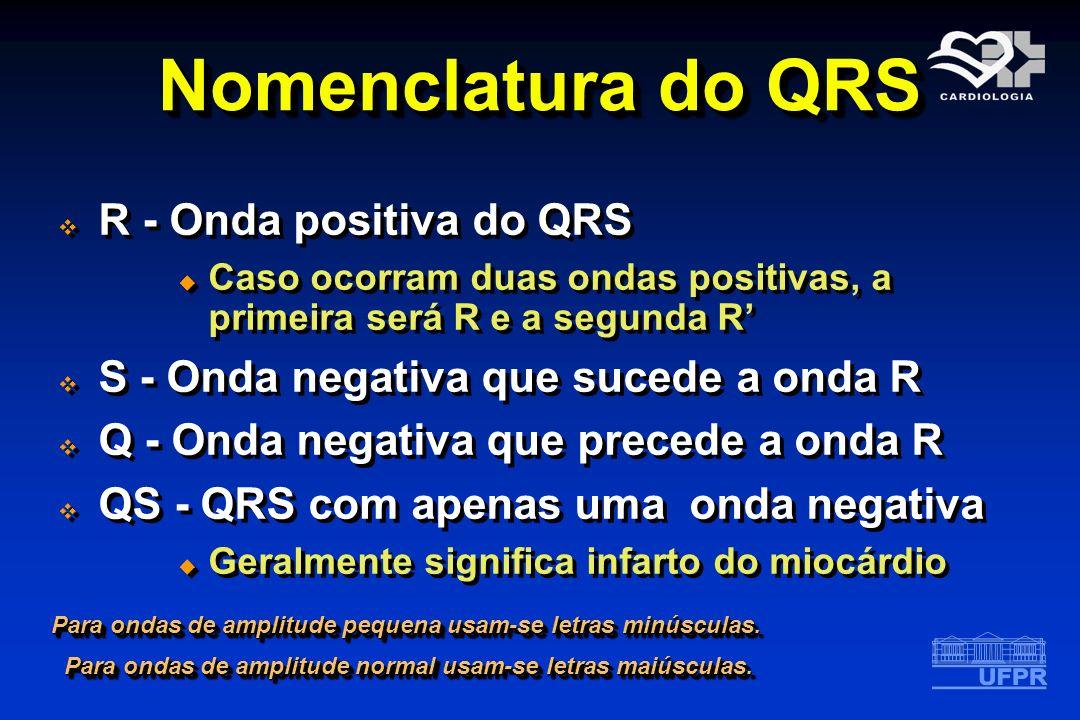 Nomenclatura do QRS R - Onda positiva do QRS