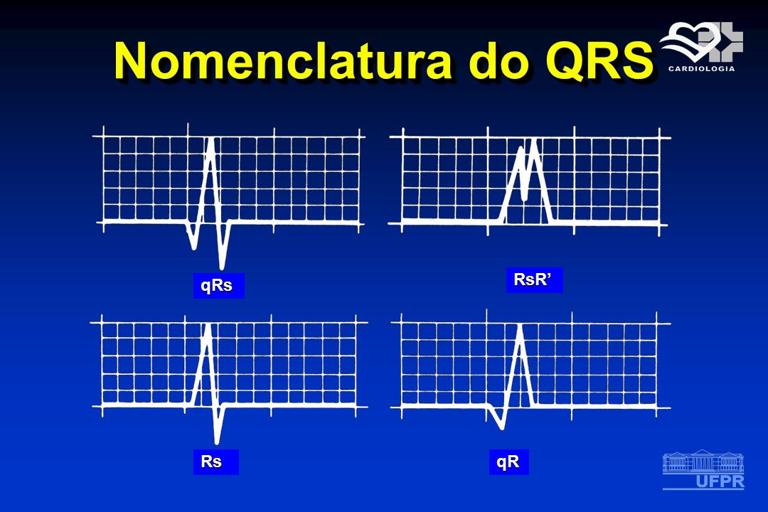 Nomenclatura do QRS RsR' qRs Rs qR