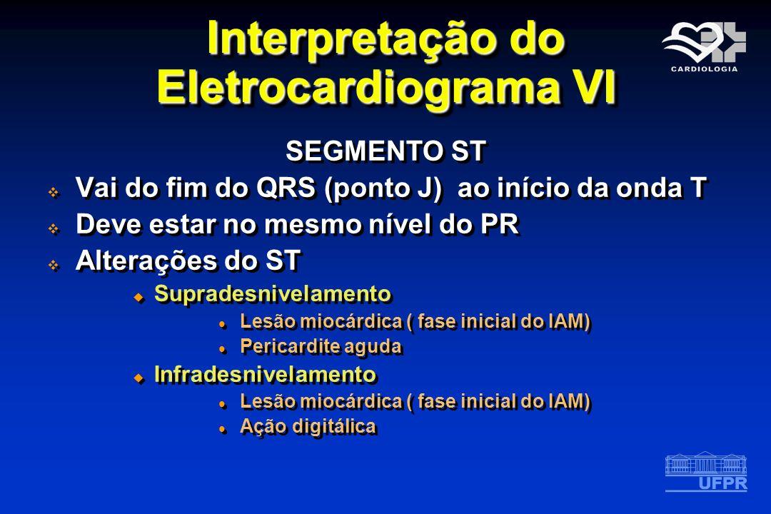Interpretação do Eletrocardiograma VI
