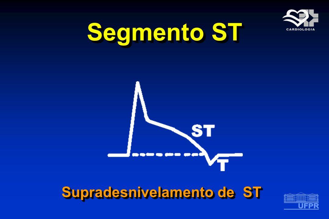 Segmento ST Supradesnivelamento de ST