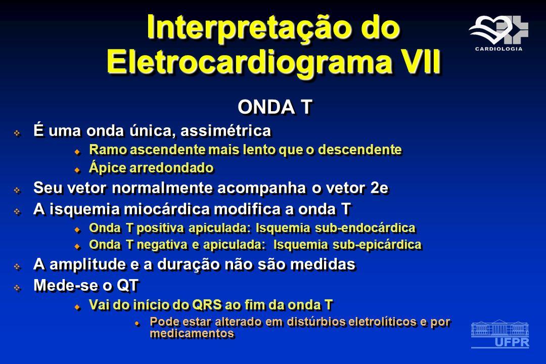 Interpretação do Eletrocardiograma VII