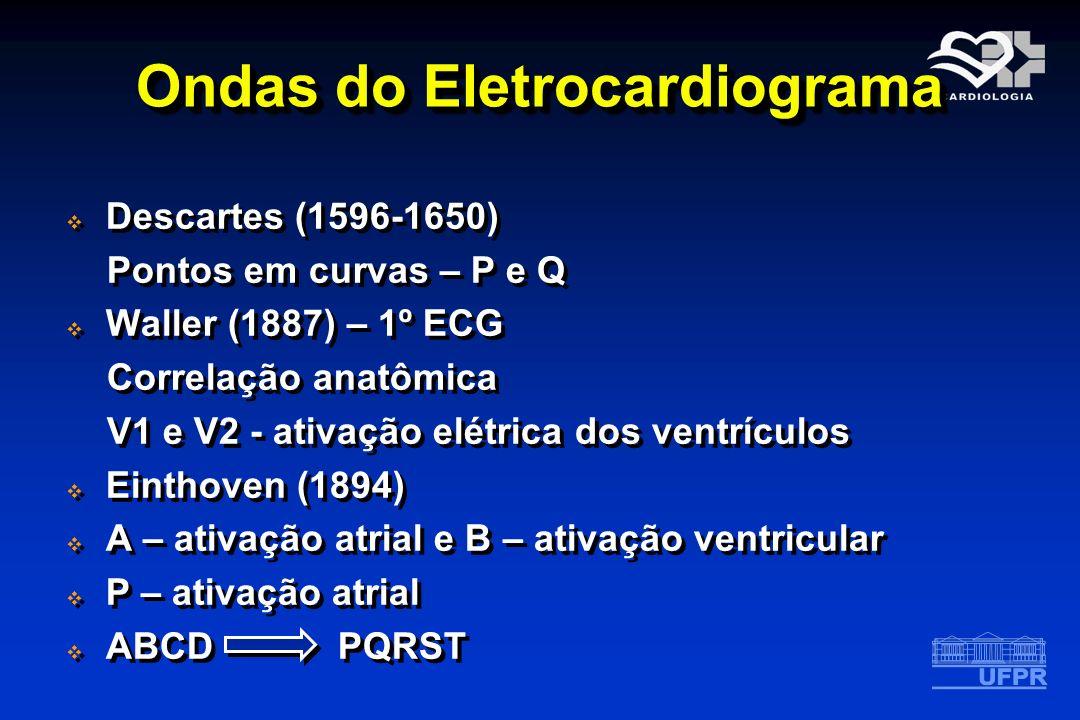 Ondas do Eletrocardiograma