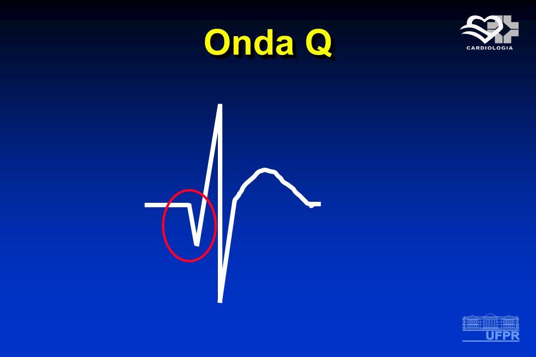 Onda Q