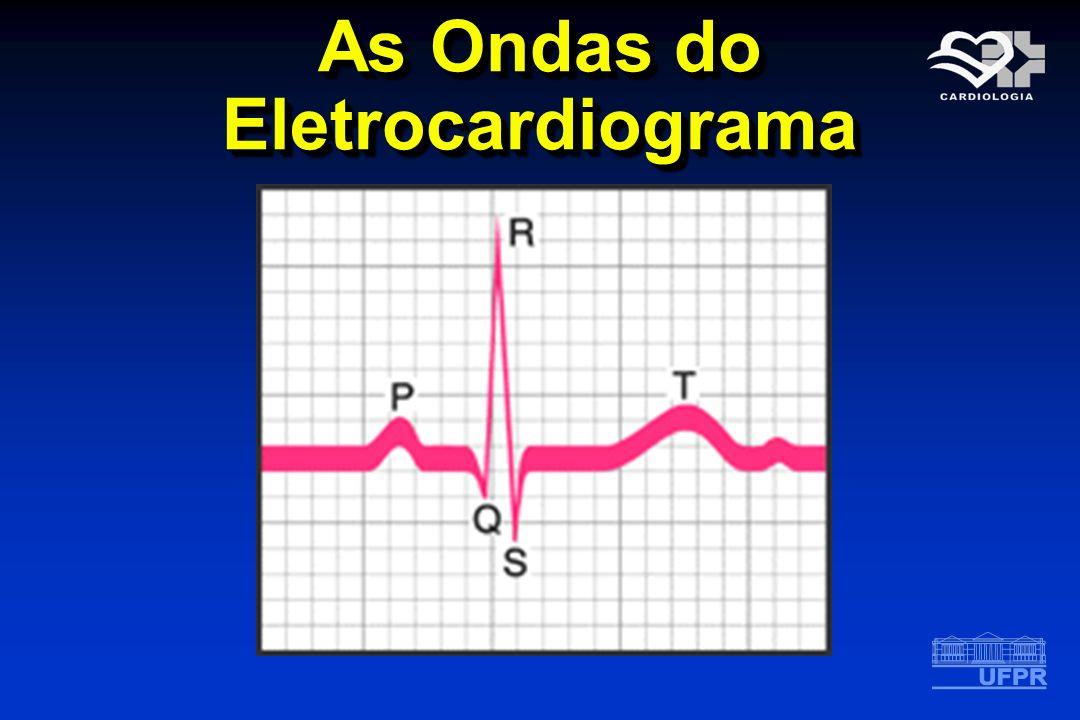 As Ondas do Eletrocardiograma