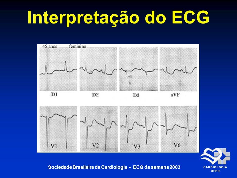 Sociedade Brasileira de Cardiologia - ECG da semana 2003