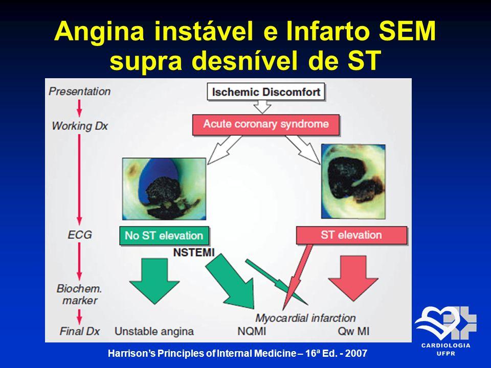 Angina instável e Infarto SEM supra desnível de ST