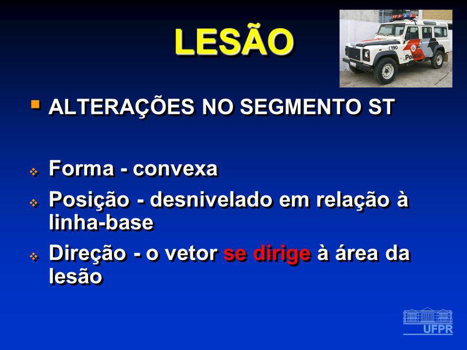 LESÃO ALTERAÇÕES NO SEGMENTO ST Forma - convexa