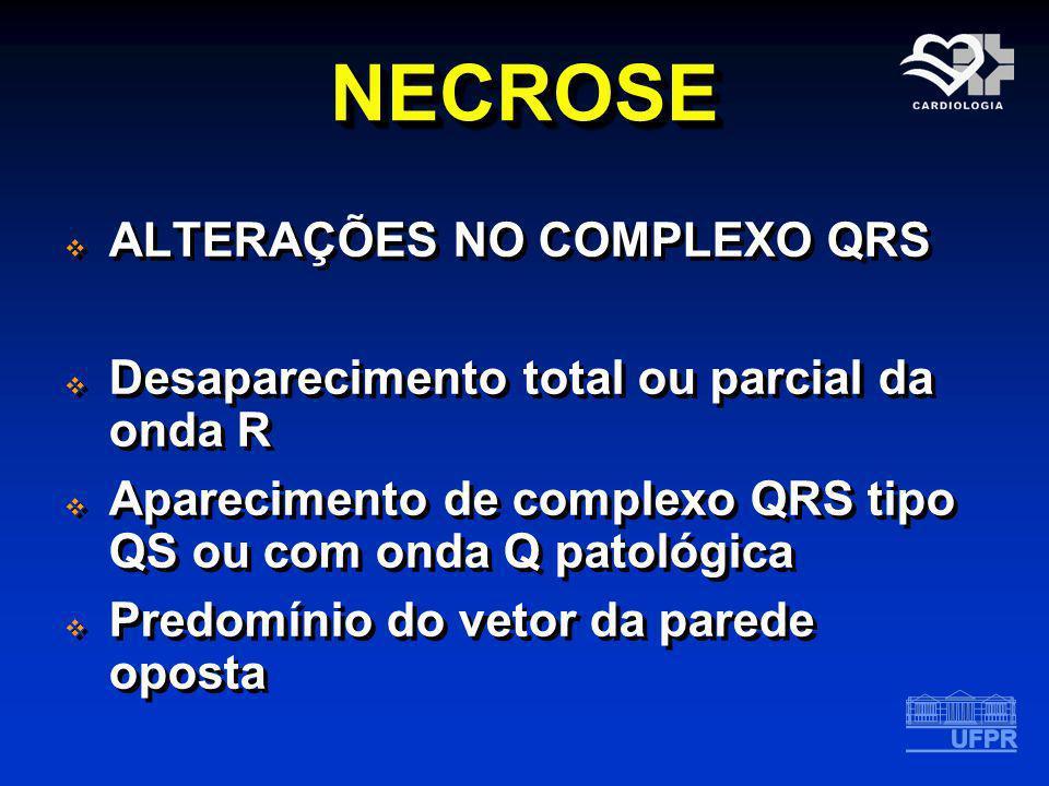 NECROSE ALTERAÇÕES NO COMPLEXO QRS