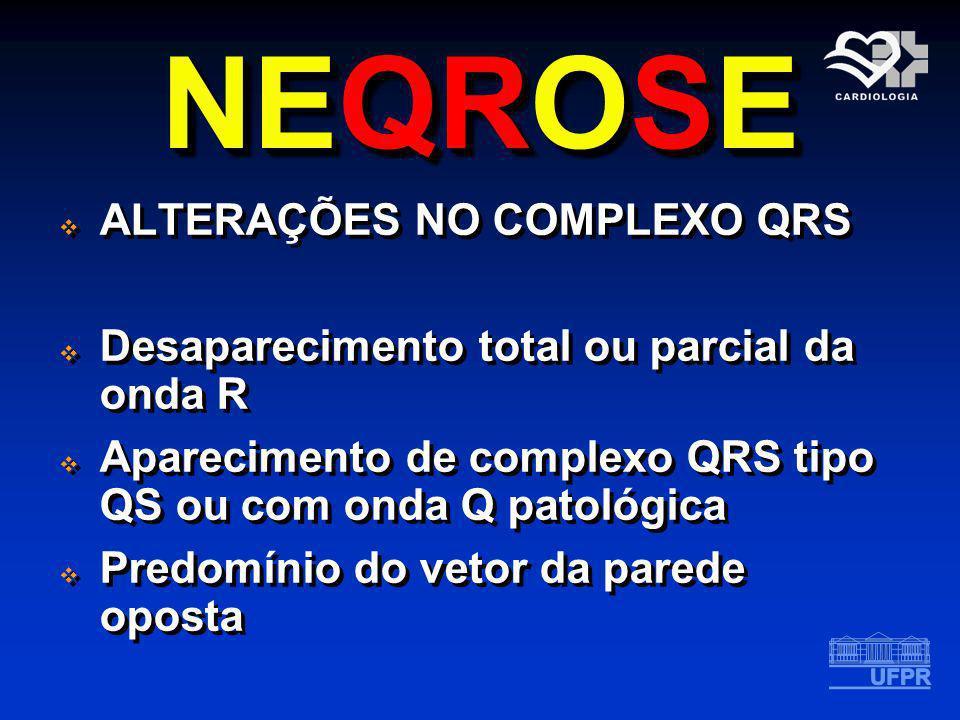 NEQROSE ALTERAÇÕES NO COMPLEXO QRS