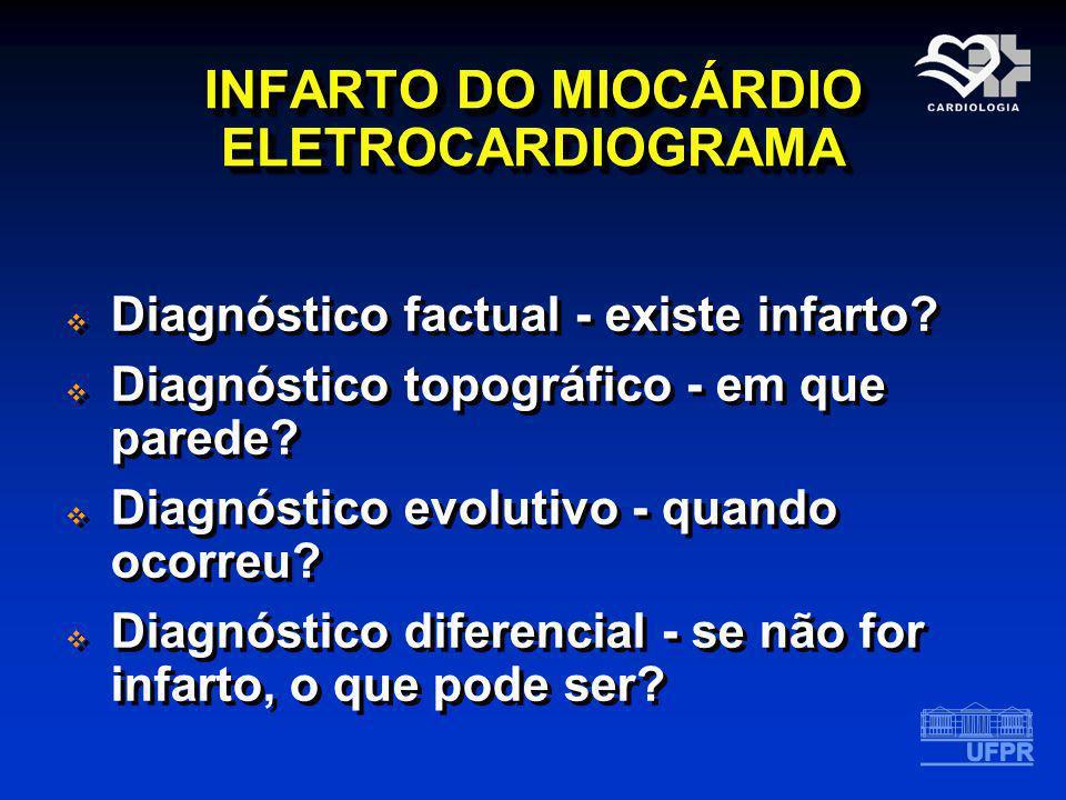 INFARTO DO MIOCÁRDIO ELETROCARDIOGRAMA