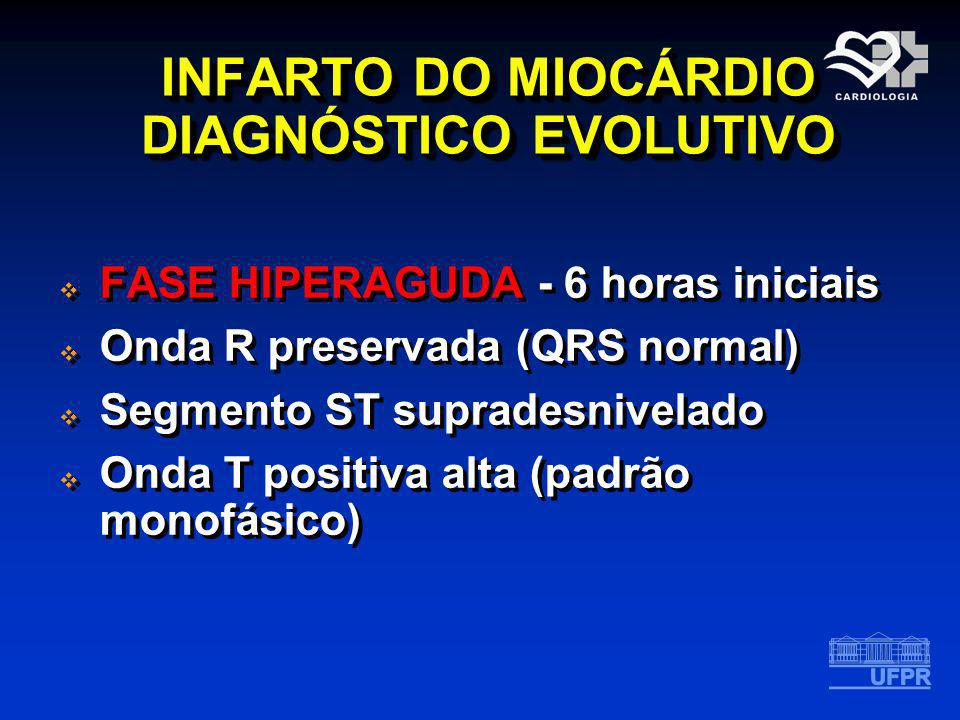 INFARTO DO MIOCÁRDIO DIAGNÓSTICO EVOLUTIVO