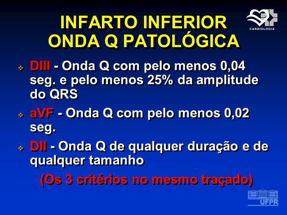 INFARTO INFERIOR ONDA Q PATOLÓGICA