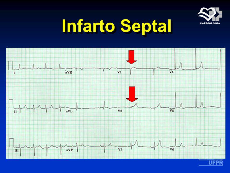 Infarto Septal