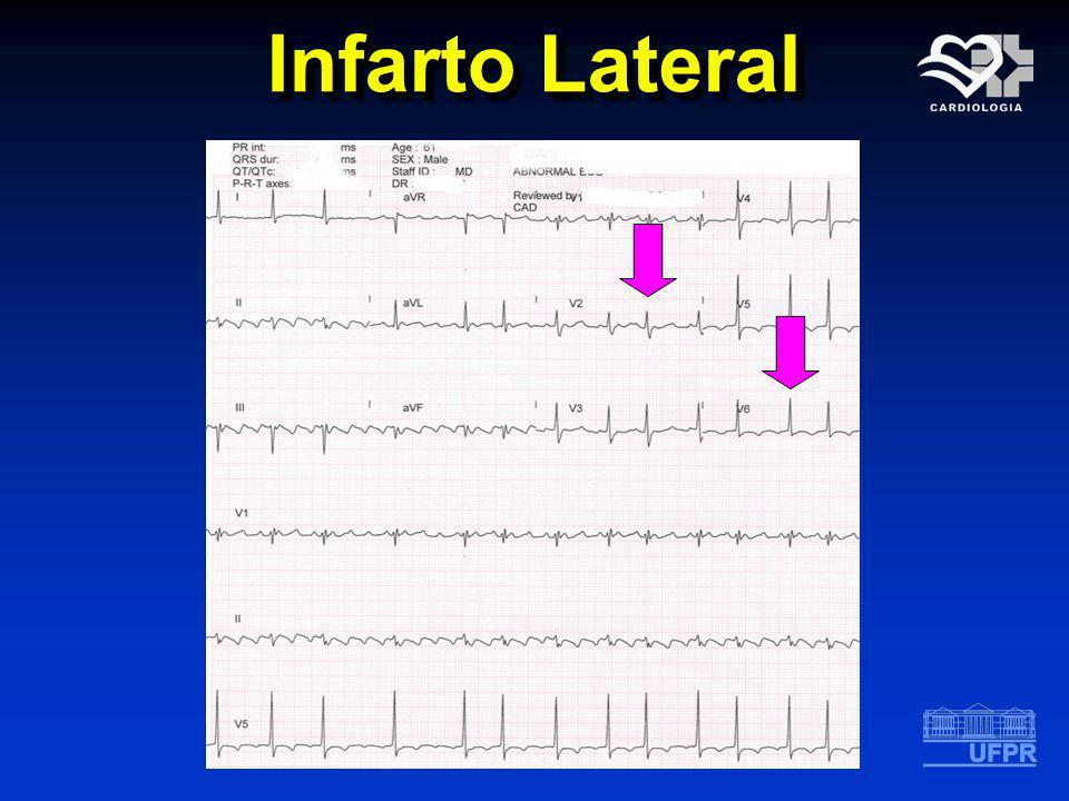 Infarto Lateral