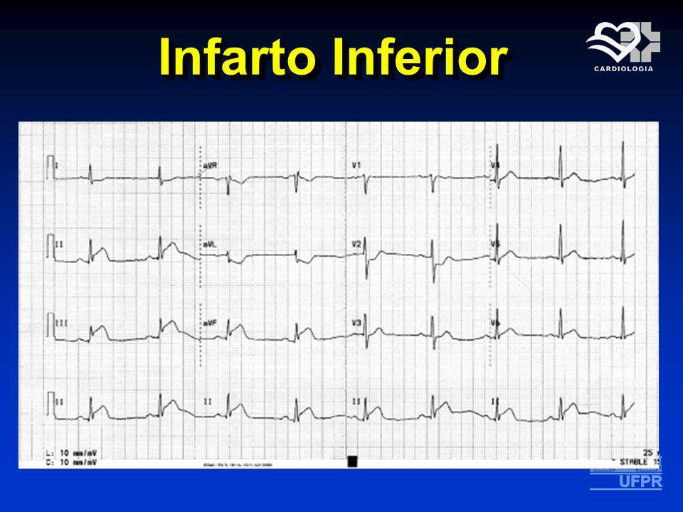 Infarto Inferior