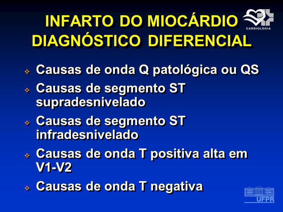 INFARTO DO MIOCÁRDIO DIAGNÓSTICO DIFERENCIAL