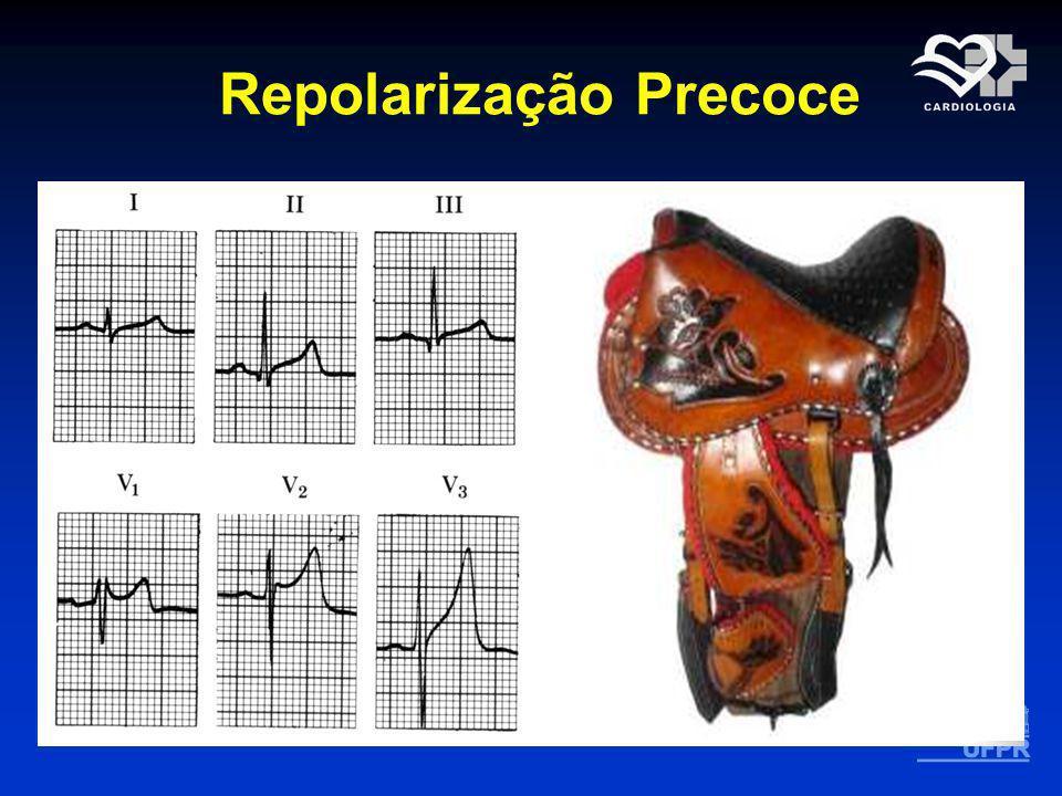 Repolarização Precoce