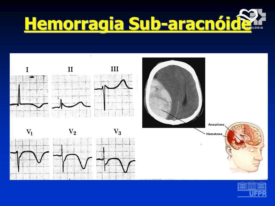 Hemorragia Sub-aracnóide