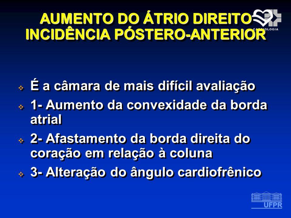 AUMENTO DO ÁTRIO DIREITO INCIDÊNCIA PÓSTERO-ANTERIOR