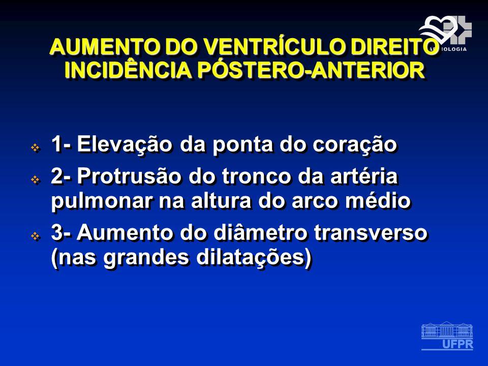 AUMENTO DO VENTRÍCULO DIREITO INCIDÊNCIA PÓSTERO-ANTERIOR