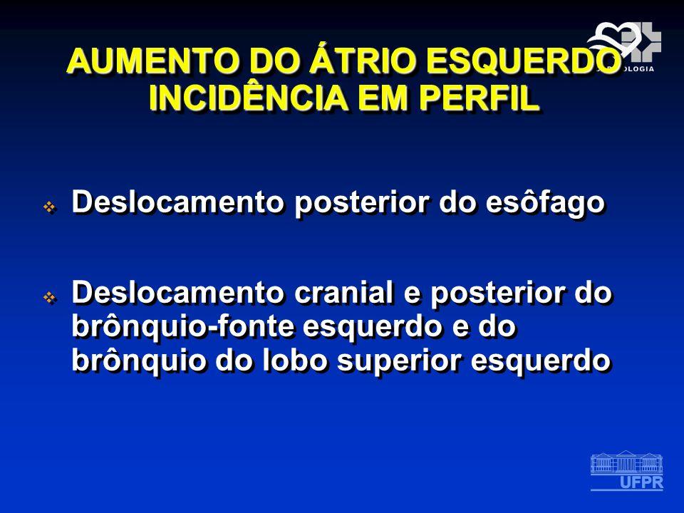 AUMENTO DO ÁTRIO ESQUERDO INCIDÊNCIA EM PERFIL