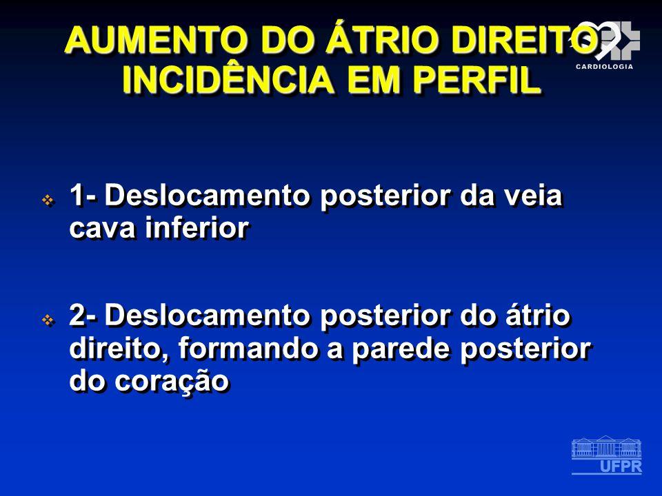 AUMENTO DO ÁTRIO DIREITO INCIDÊNCIA EM PERFIL