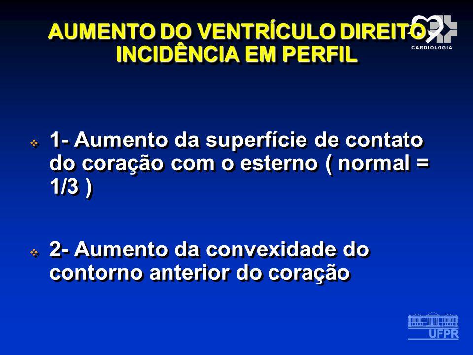 AUMENTO DO VENTRÍCULO DIREITO INCIDÊNCIA EM PERFIL