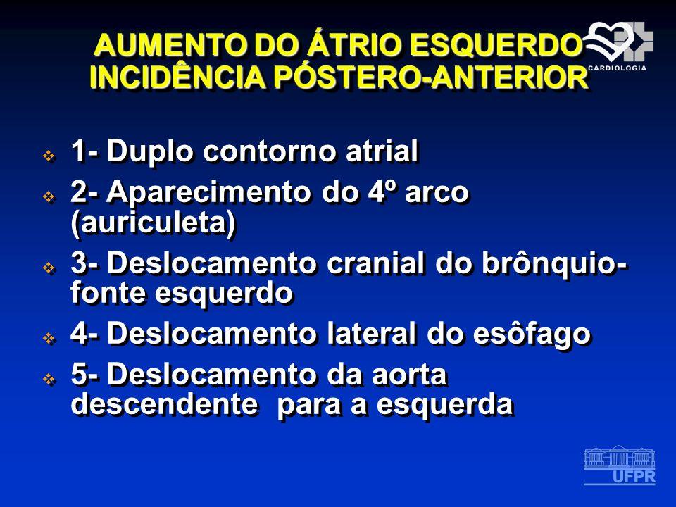 AUMENTO DO ÁTRIO ESQUERDO INCIDÊNCIA PÓSTERO-ANTERIOR