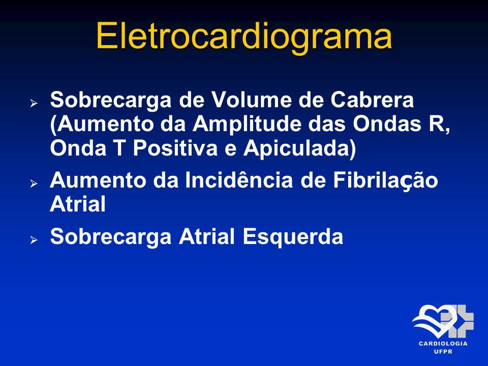 Eletrocardiograma Sobrecarga de Volume de Cabrera (Aumento da Amplitude das Ondas R, Onda T Positiva e Apiculada)