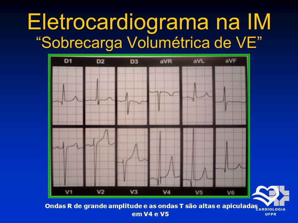 Eletrocardiograma na IM Sobrecarga Volumétrica de VE