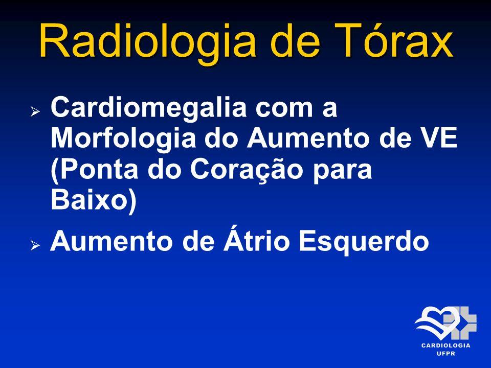 Radiologia de TóraxCardiomegalia com a Morfologia do Aumento de VE (Ponta do Coração para Baixo) Aumento de Átrio Esquerdo.