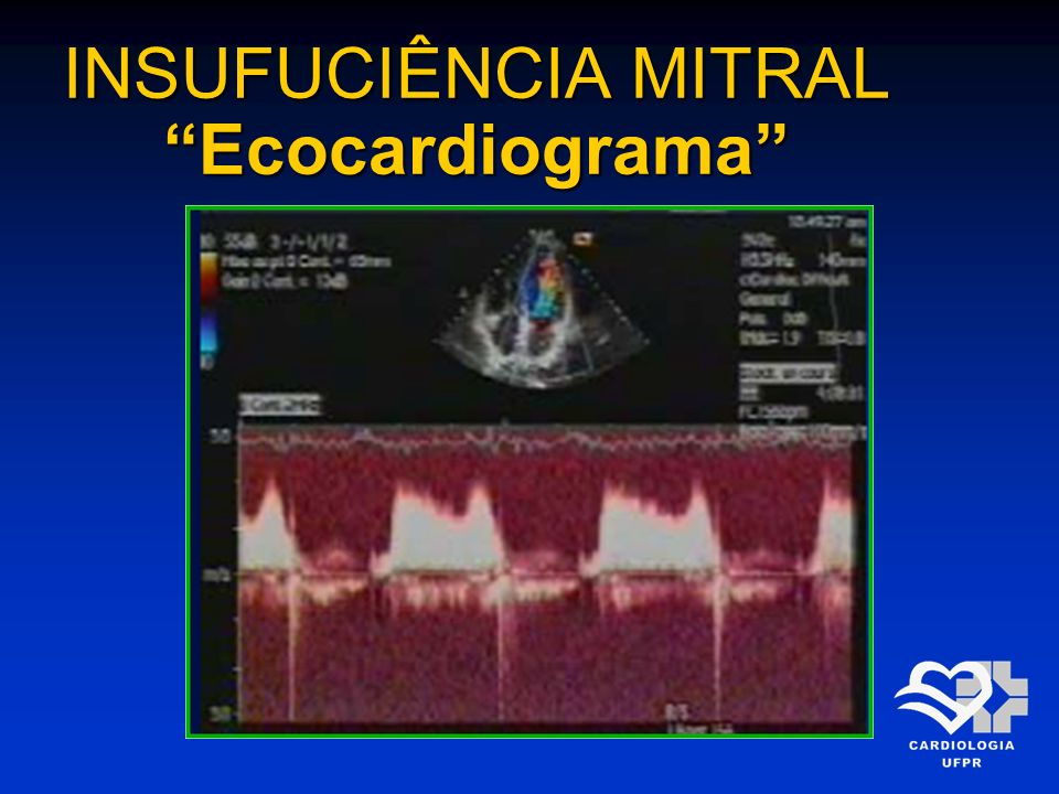 INSUFUCIÊNCIA MITRAL Ecocardiograma