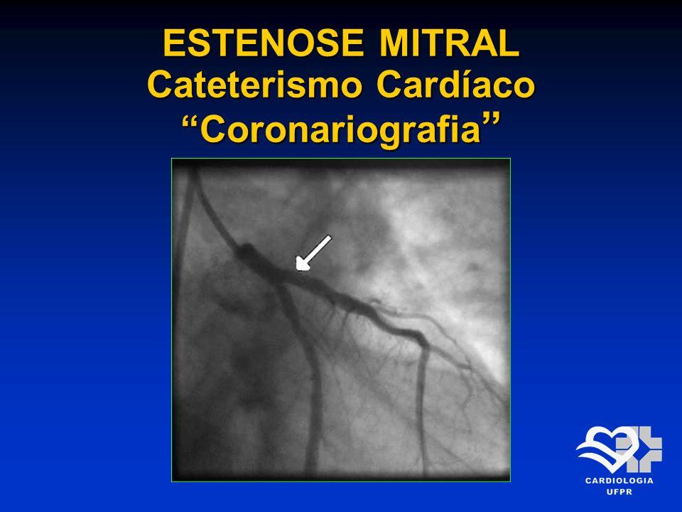 ESTENOSE MITRAL Cateterismo Cardíaco Coronariografia