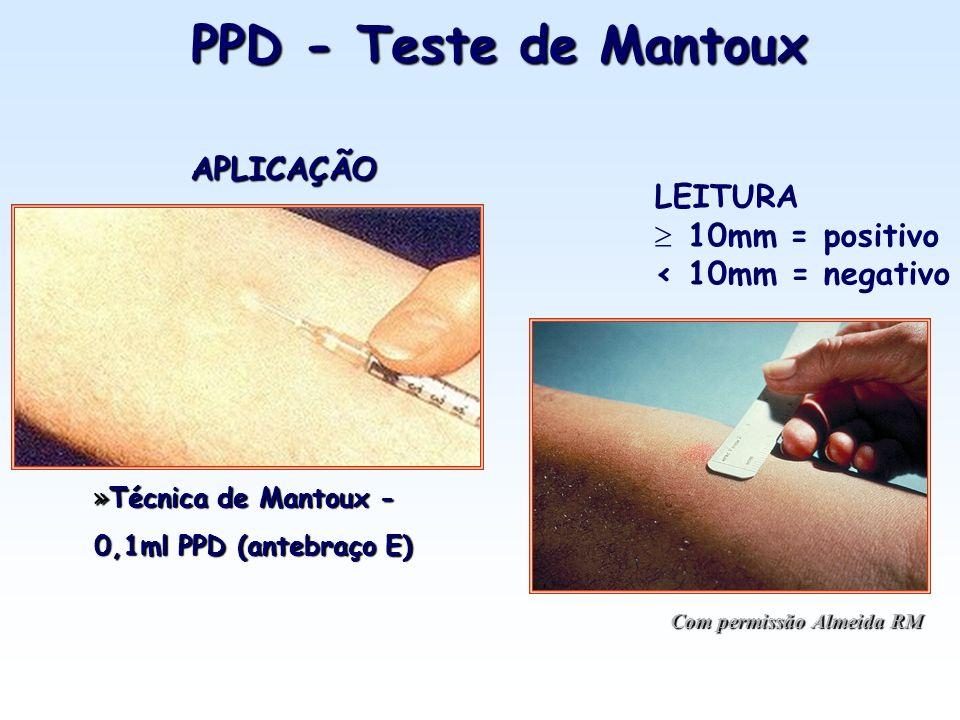 PPD - Teste de Mantoux APLICAÇÃO LEITURA 10mm = positivo
