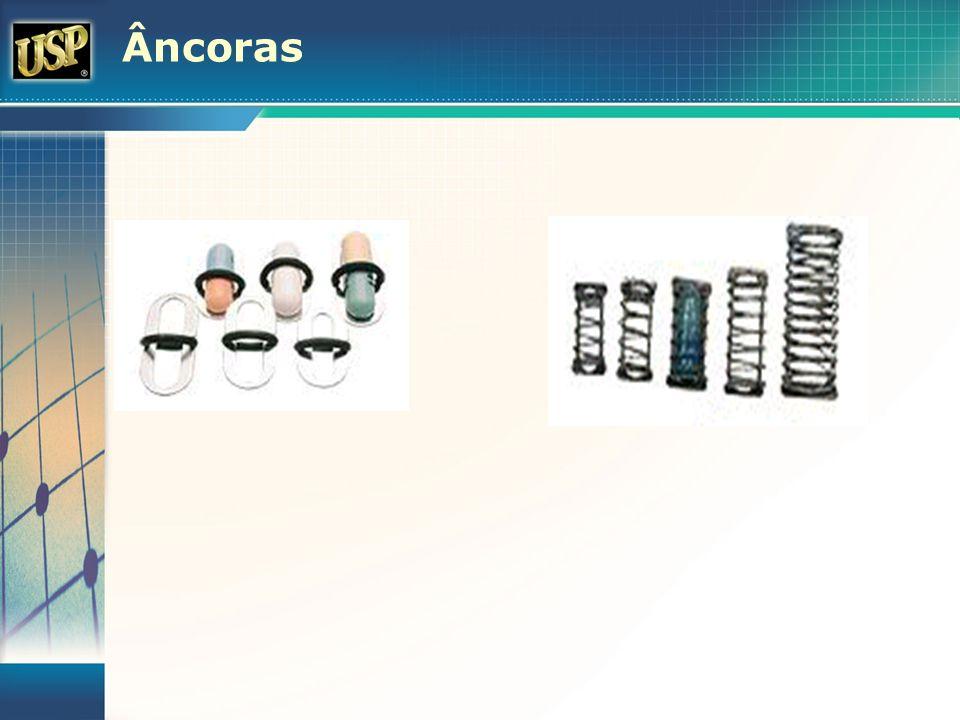 Âncoras
