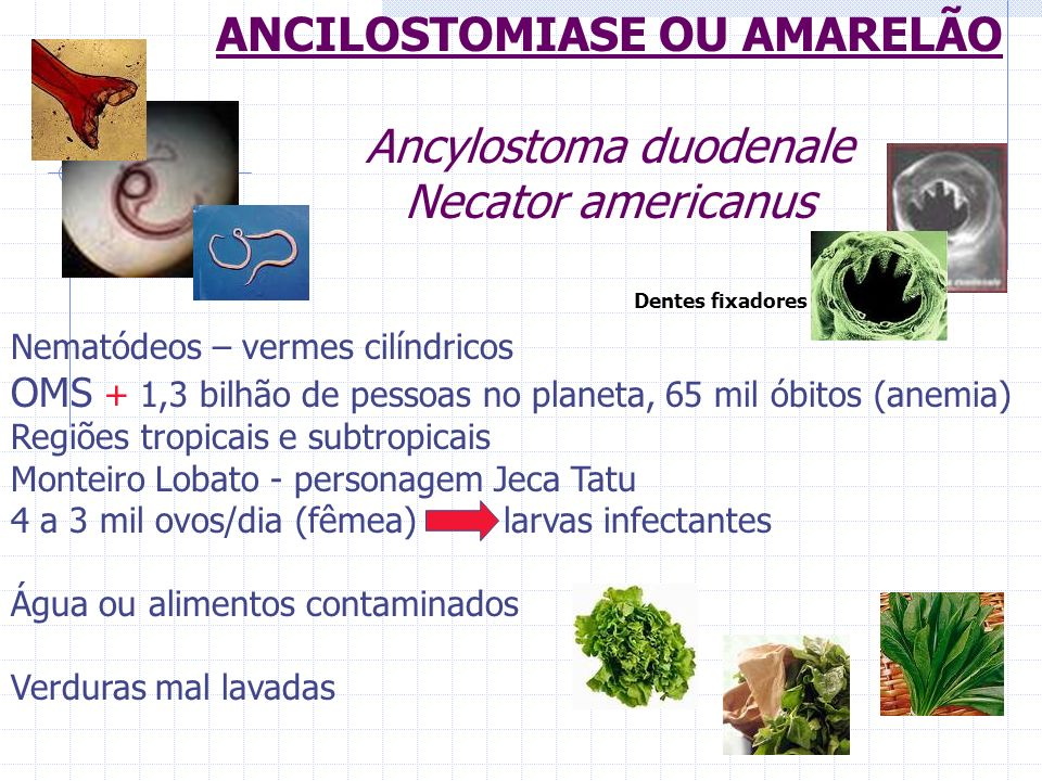 ANCILOSTOMIASE OU AMARELÃO