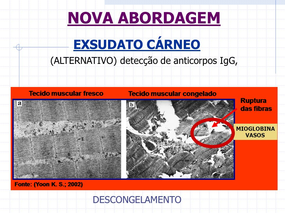 (ALTERNATIVO) detecção de anticorpos IgG,