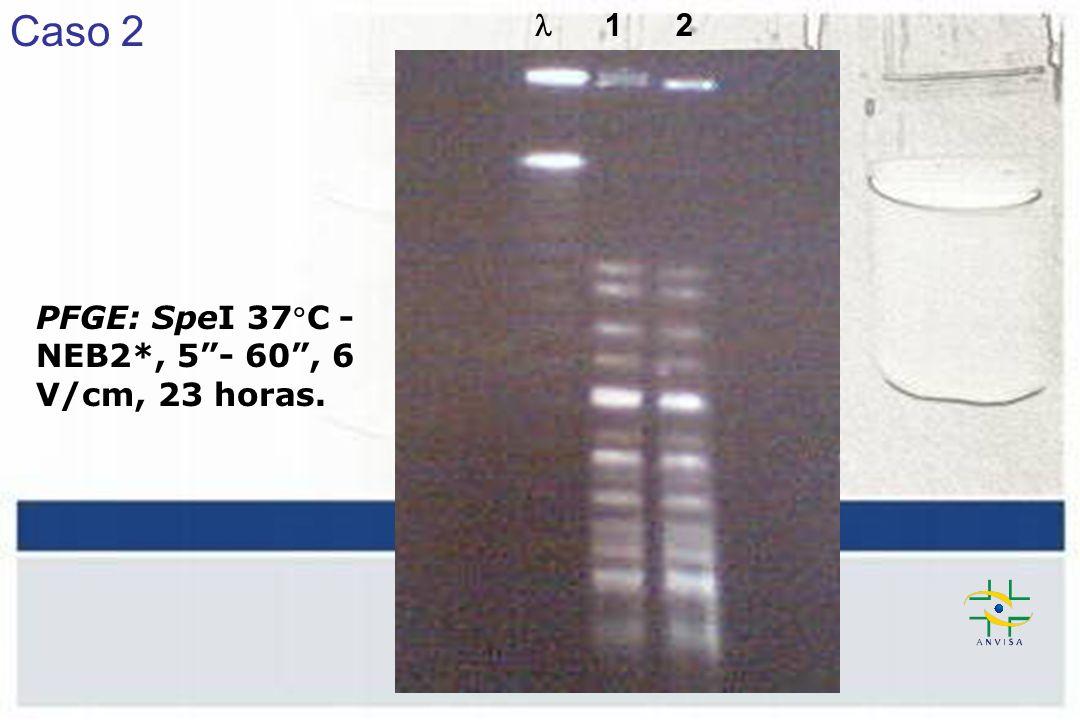 Caso 2  1 2 PFGE: SpeI 37C - NEB2*, 5 - 60 , 6 V/cm, 23 horas.