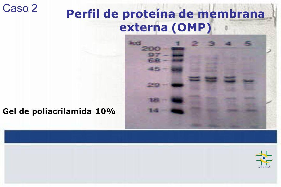 Perfil de proteína de membrana externa (OMP)