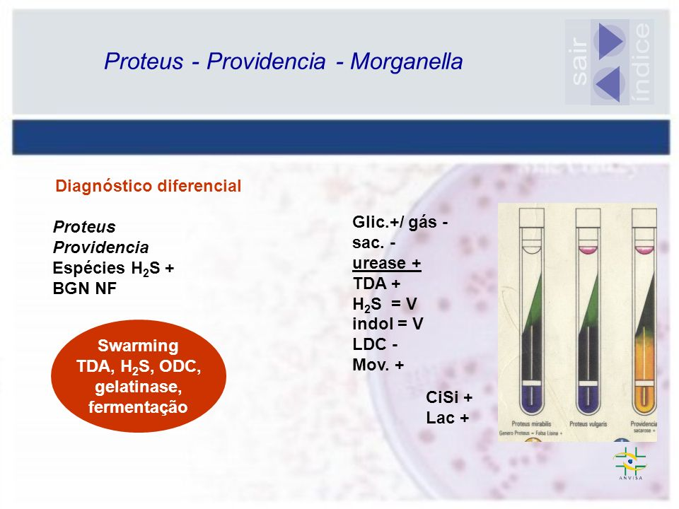 índice sair Proteus - Providencia - Morganella Diagnóstico diferencial