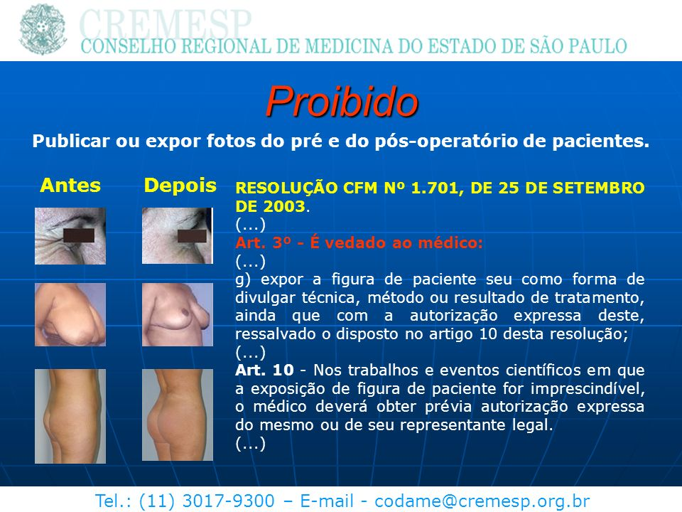 Publicar ou expor fotos do pré e do pós-operatório de pacientes.