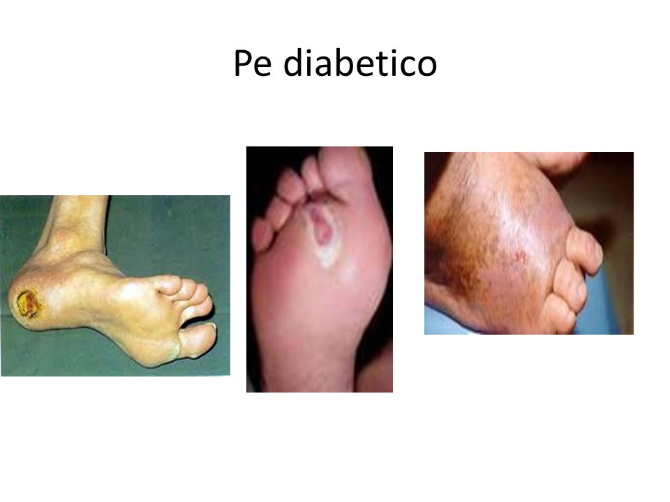 Pe diabetico