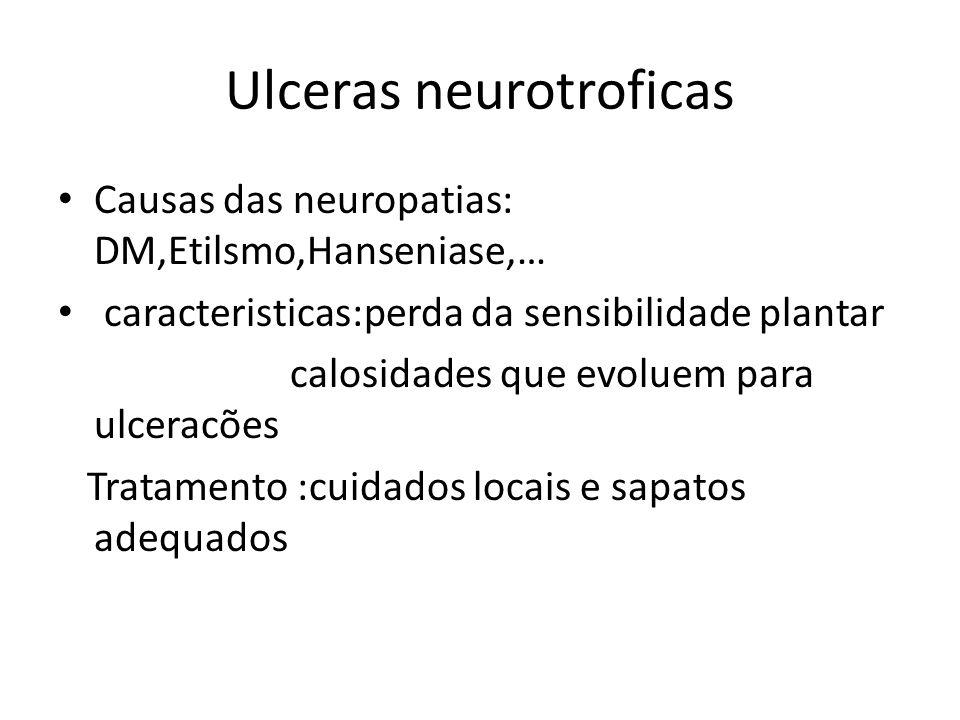Ulceras neurotroficas