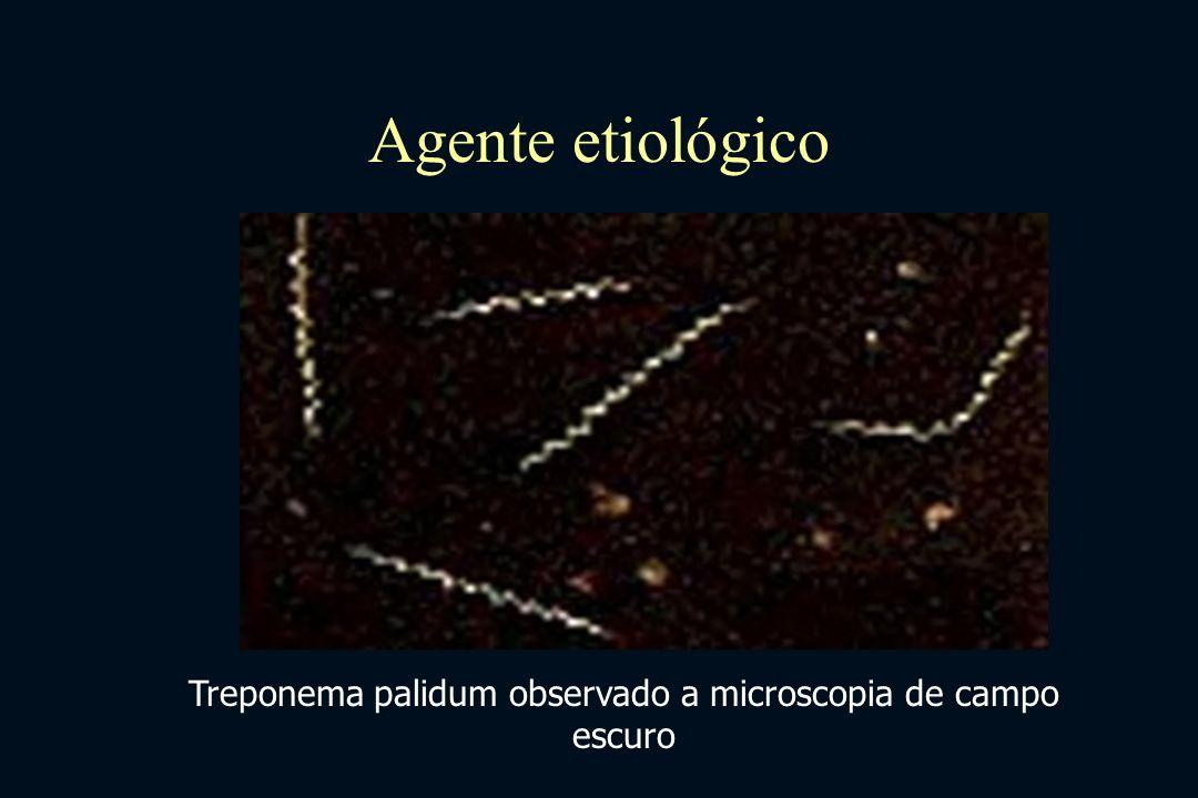 Treponema palidum observado a microscopia de campo escuro