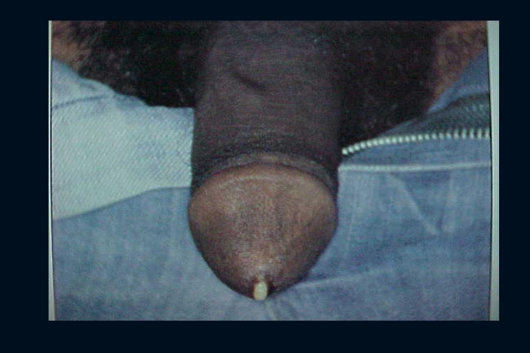 2 - EPIDEMIOLOGIA incidência crescente: décadas 60 e 70: liberação sexual. década de 80: pandemia de AIDS.