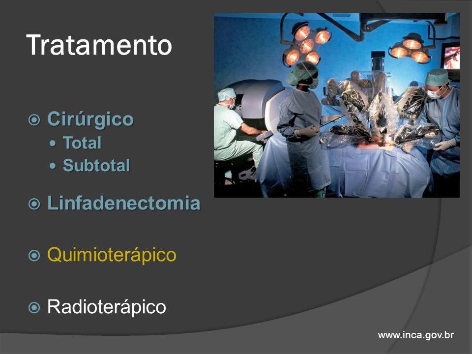 Tratamento Cirúrgico Linfadenectomia Quimioterápico Radioterápico
